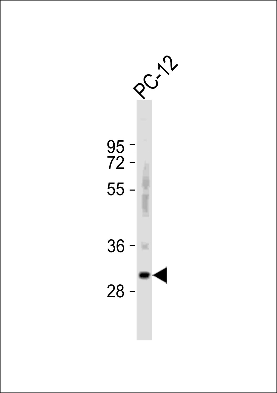 WB - Bcl-2 Antibody (BH3 Domain Specific) AP1303a