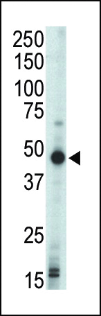 WB - Protein Kinase A regulatory subunit I beta Antibody (N-term) AP7051a