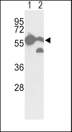 WB - Pyruvate Kinase (PKM2) Antibody (C-term N491) AP7173A