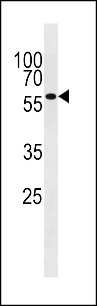 WB - HBO1/MYST2 Antibody (Center) AP1113c