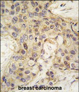IHC-P - ANGEL2 Antibody (Center) AP2749c