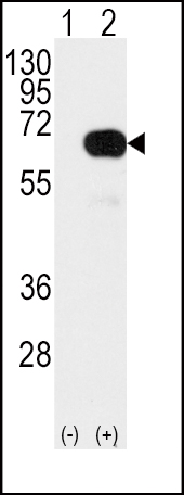 WB - SMAD4 Antibody (T277) AP7753a