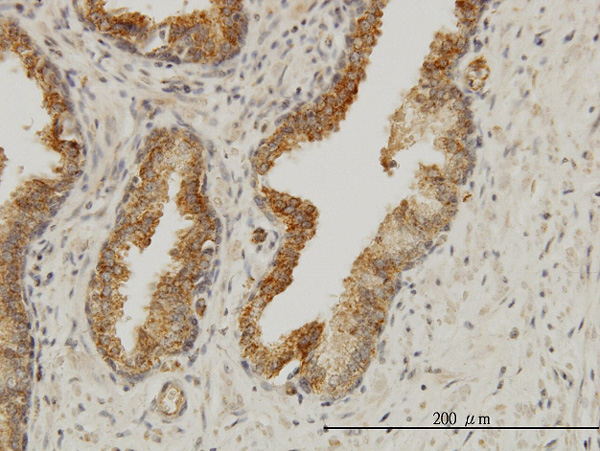 IHC - AAAS Antibody (monoclonal) (M02) AT1001a