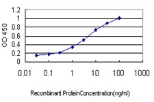 E - ABCC6 Antibody (monoclonal) (M01) AT1007a