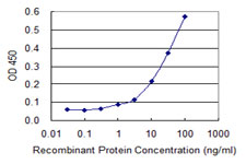 E - ABHD5 Antibody (monoclonal) (M02) AT1013a