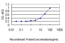 E - ACTR2 Antibody (monoclonal) (M01) AT1034a