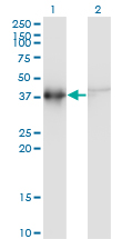 WB - ACTRT2 Antibody (monoclonal) (M03) AT1036a