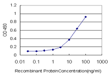 E - ADCY5 Antibody (monoclonal) (M01) AT1051a