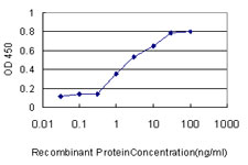 E - ADD1 Antibody (monoclonal) (M01) AT1053a