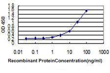 E - AES Antibody (monoclonal) (M02) AT1063a