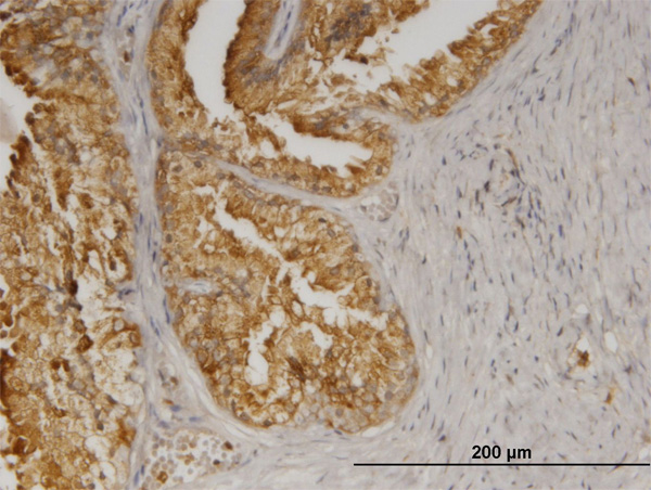 IHC - AGTRAP Antibody (monoclonal) (M02) AT1069a