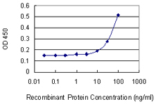E - ARPC2 Antibody (monoclonal) (M01) AT1200a