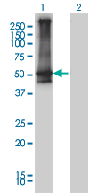 WB - ARRB2 Antibody (monoclonal) (M01) AT1201a