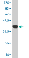 WB - ARVCF Antibody (monoclonal) (M01) AT1204a