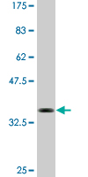 WB - BCL11A Antibody (monoclonal) (M03) AT1281a