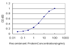 E - BCL7C Antibody (monoclonal) (M01) AT1285a