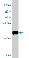 WB - BVES Antibody (monoclonal) (M01) AT1321a