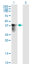 WB - C10orf4 Antibody (monoclonal) (M02) AT1325a