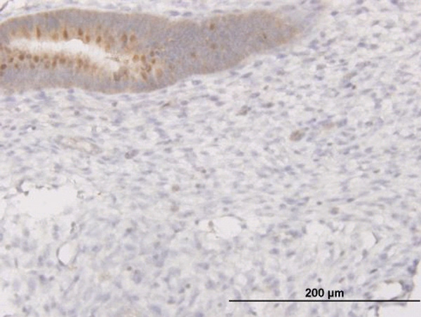 IHC - C13orf24 Antibody (monoclonal) (M02) AT1328a