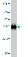 WB - C17orf75 Antibody (monoclonal) (M02) AT1331a