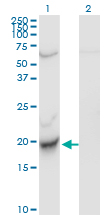 WB - C22orf18 Antibody (monoclonal) (M01) AT1344a