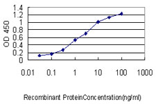 E - C22orf18 Antibody (monoclonal) (M01) AT1344a