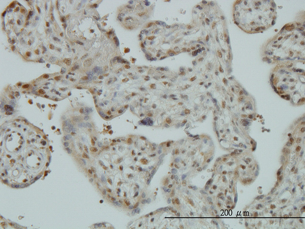 IHC - CAND1 Antibody (monoclonal) (M01) AT1382a