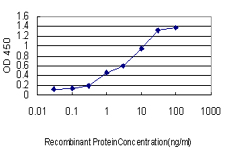 E - CANT1 Antibody (monoclonal) (M01) AT1384a