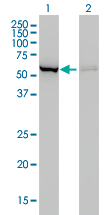 WB - CBS Antibody (monoclonal) (M01) AT1408a