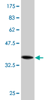 WB - CCDC6 Antibody (monoclonal) (M03) AT1412a