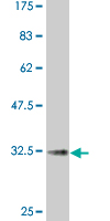 WB - CCR2 Antibody (monoclonal) (M01A) AT1425a