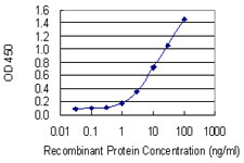 E - CCRN4L Antibody (monoclonal) (M01) AT1426a