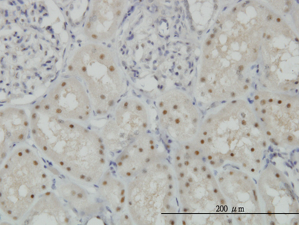 IHC - CDADC1 Antibody (monoclonal) (M01) AT1453a