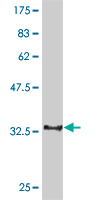 WB - CDC14A Antibody (monoclonal) (M01) AT1455a