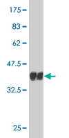 WB - CDC14A Antibody (monoclonal) (M02) AT1456a