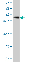 WB - CDC2 Antibody (monoclonal) (M01) AT1457a