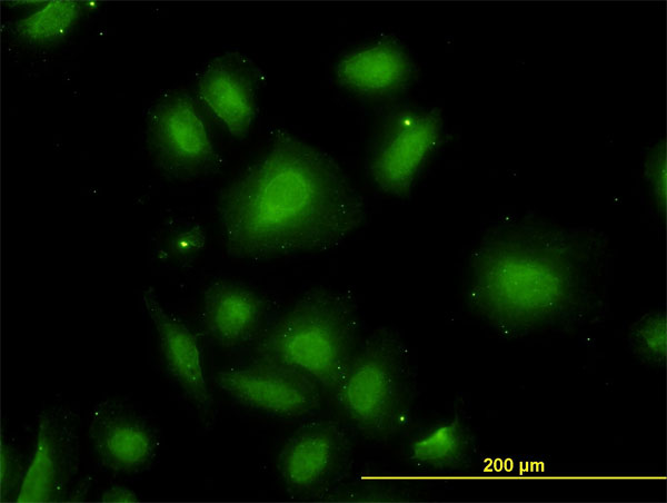 IF - CDR2 Antibody (monoclonal) (M01) AT1484a