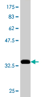 WB - CDR2 Antibody (monoclonal) (M01) AT1484a