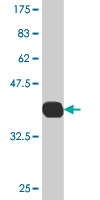WB - CES2 Antibody (monoclonal) (M02) AT1499a