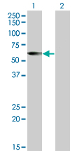 WB - CESK1 Antibody (monoclonal) (M01) AT1500a