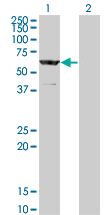WB - CESK1 Antibody (monoclonal) (M12) AT1501a