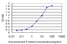 E - CETN2 Antibody (monoclonal) (M01) AT1504a