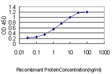 E - CETN3 Antibody (monoclonal) (M01) AT1505a