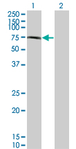 WB - CHFR Antibody (monoclonal) (M08) AT1519a
