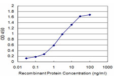 E - CHML Antibody (monoclonal) (M03) AT1520a