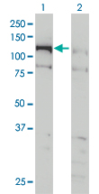 WB - CHTF18 Antibody (monoclonal) (M01) AT1532a