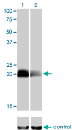 WB - CITED1 Antibody (monoclonal) (M01) AT1540a