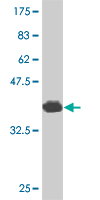 WB - CITED1 Antibody (monoclonal) (M03) AT1541a
