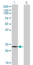 WB - CITED4 Antibody (monoclonal) (M08) AT1542a