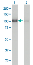 WB - CNOT3 Antibody (monoclonal) (M01) AT1572a